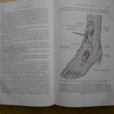 TRATAT DE CHIRURGIE ORTOPEDICA - IN GERMANA - 1920 - Carte Ortopedie